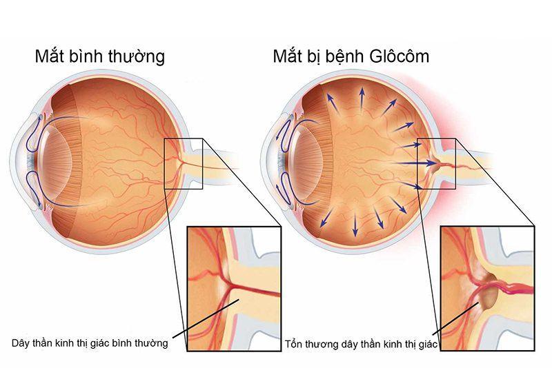 Mắt bình thường - mắt bị Glocom