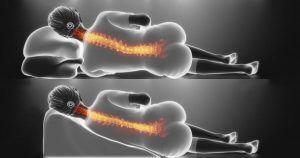 Kê cao gối đầu không làm giảm trào ngược mà còn gây ảnh hưởng đến cột sống cổ