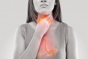 Triệu chứng không điển hình là cảm giác vướng cổ