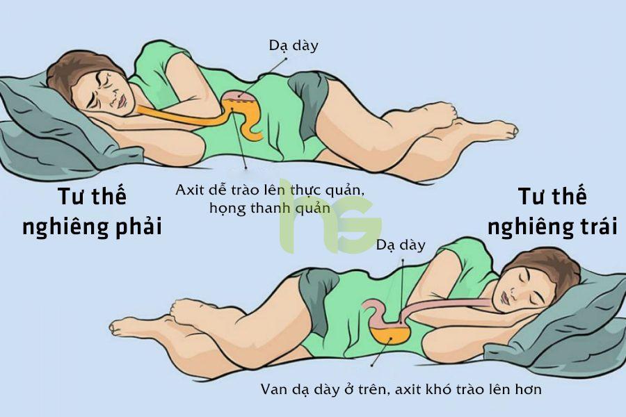 Khi nằm nghiêng trái acid trong dạ dày sẽ khó trào ngược hơn so với nằm nghiêng phải