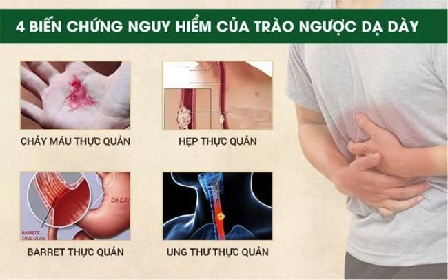 4 biến chứng của bệnh trào ngược dạ dày